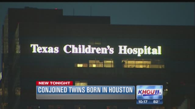 Conjoined twins born in Houston face challenges