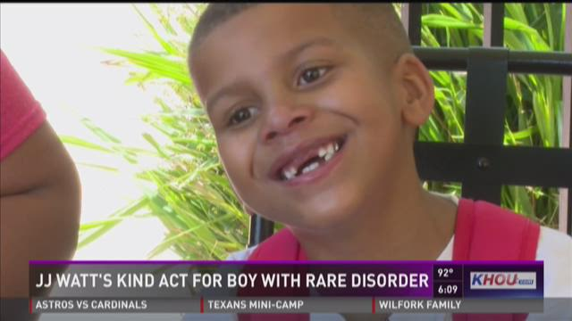 J.J. Watt's kind act for boy with rare disorder